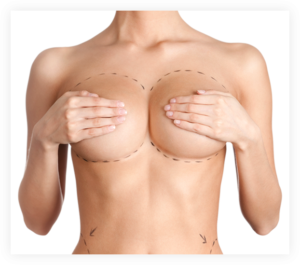 Hardened of breast implant due to capsular contracture
