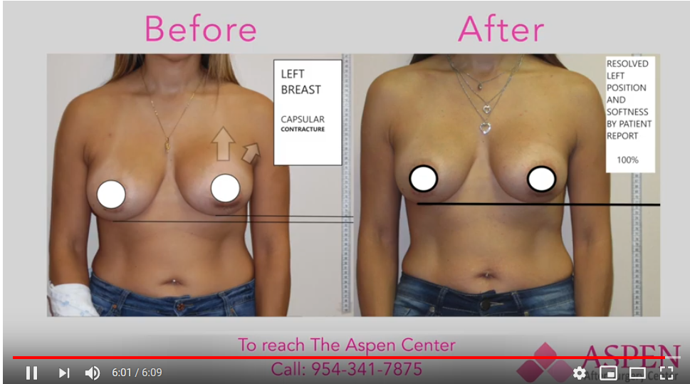 Breast Treatment