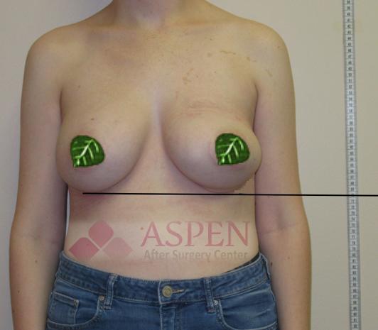 breast-implants-532x465